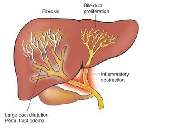 Гепатит В. Здоровье печени